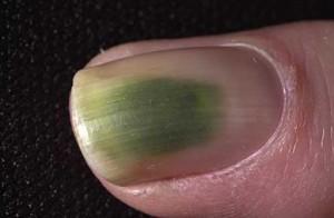 Een groene vlek wijst op een bacteriële infectie